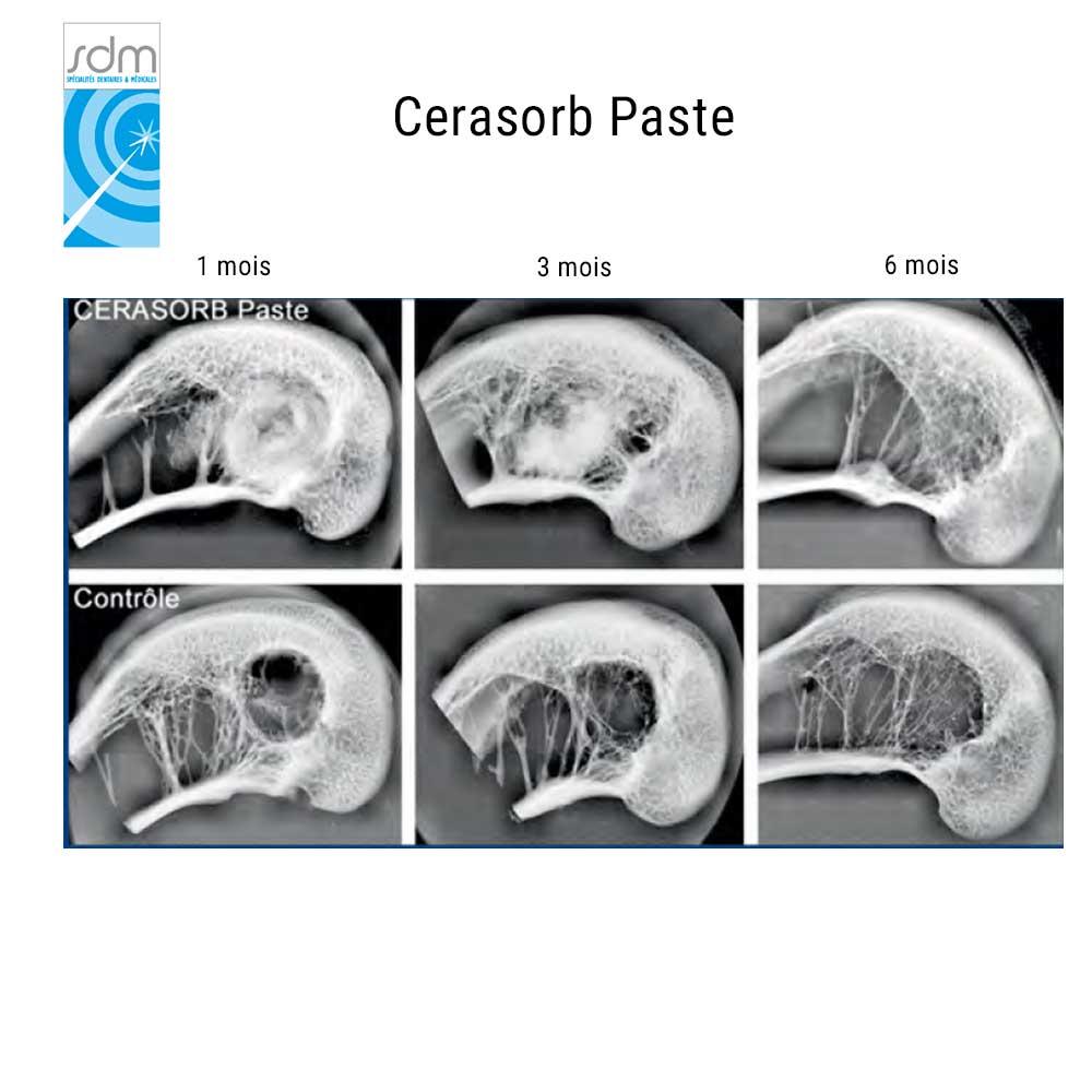 cerasorb.jpg